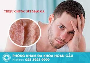 Triệu chứng sùi mào gà - phát hiện sớm, điều trị ngay, bảo vệ sức khỏe