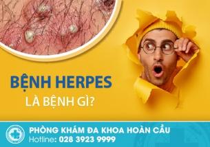 Bệnh herpes là gì? Dấu hiệu nhận biết như thế nào?