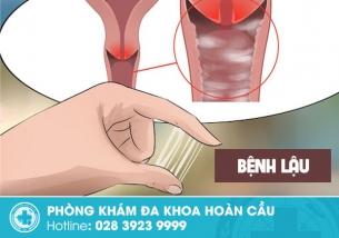 Bệnh lậu là gì? Chúng nguy hiểm như thế nào đến sức khỏe của bạn?