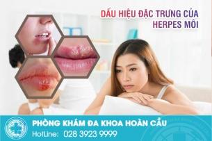Dấu hiệu của Herpes môi - Hướng dẫn cách điều trị hiệu quả không cần dùng thuốc