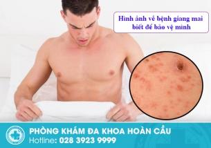 Hình ảnh giúp nhận biết lây nhiễm giang mai ở người bệnh