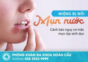 Miệng bị nổi mụn nước - Cảnh báo nguy cơ mắc mụn rộp sinh dục