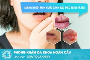Miệng bị nổi mụn nước: Chẩn đoán bị mắc bệnh xã hội