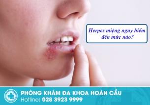 Herpes miệng nguy hiểm đến mức nào?