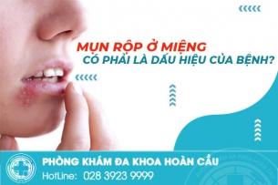 Mụn rộp ở miệng có phải là dấu hiệu của bệnh?