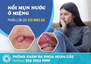 Nổi mụn nước trong miệng - Không chỉ đơn giản là nhiệt miệng thông thường
