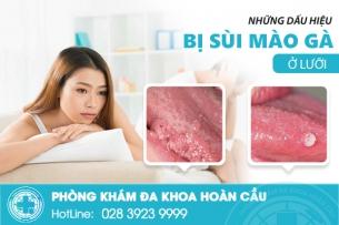 Sùi mào gà lưỡi và những biến chứng nguy hiểm cần điều trị