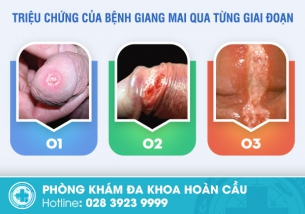 Tuyệt đối không nên xem nhẹ những triệu chứng giang mai trên cơ thể